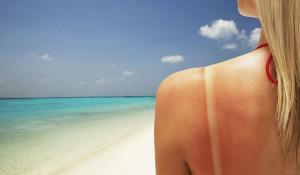 Мифы и правда о солнечных ваннах. Так ли полезен загар?