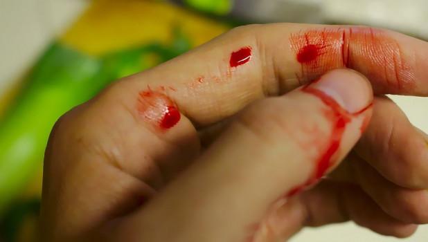 Рука в крови.