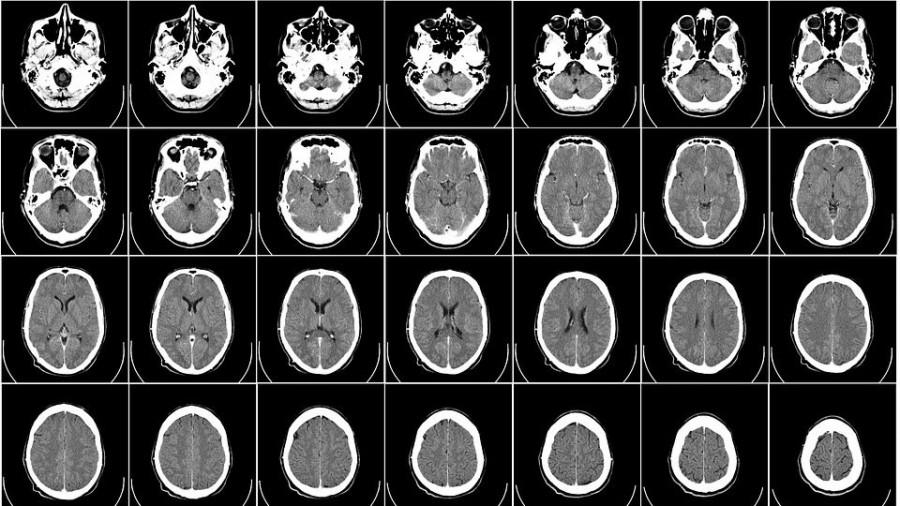 Томография. Головной мозг.
