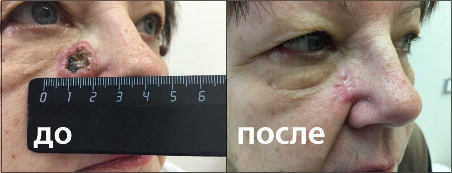 Фотодинамическая терапия в лечении рака кожи