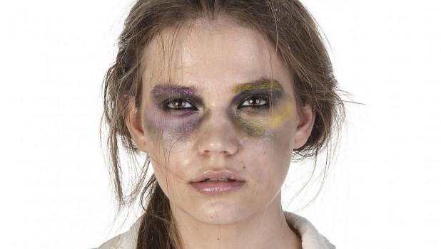 Женщина в синяках, насилие.