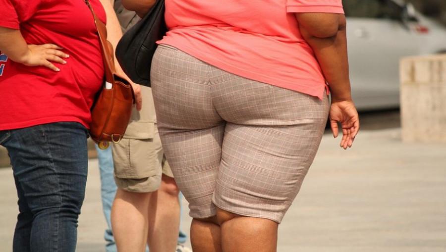 Ожирение. Лишний вес.