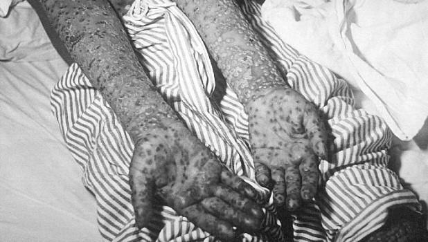 Пациент с оспой, эпидемия Косово, Югославия, март и апрель 1972 года