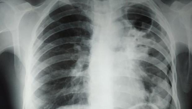 Туберкулез. Легкие.