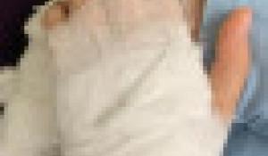 Девочке по ошибке прооперировали другую руку.