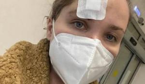 Анастасия Веденская поделилась с подписчиками фото с побоями после драки.
